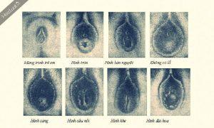 Những hình dạng của màng trinh